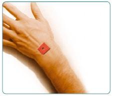 हाथ का दर्द TENS