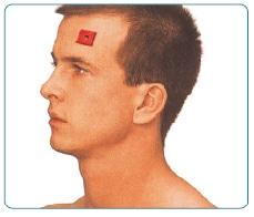 तनाव सिर दर्द TENS